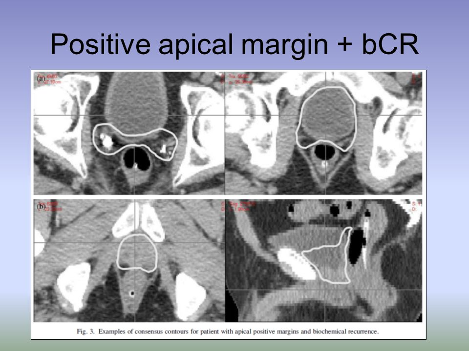 Positive apical margin + bCR