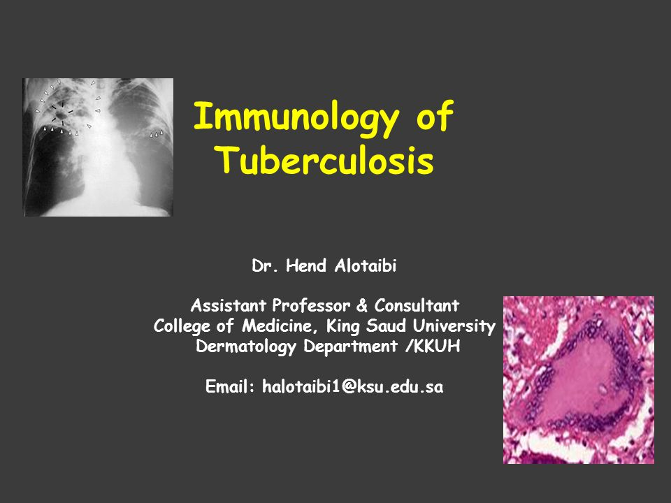 the epidemiology of tuberculosis The overall prevalence of mdr tuberculosis in south africa in 2012–14 was similar to that in 2001–02 however, prevalence of rifampicin-resistant tuberculosis almost doubled among new cases.