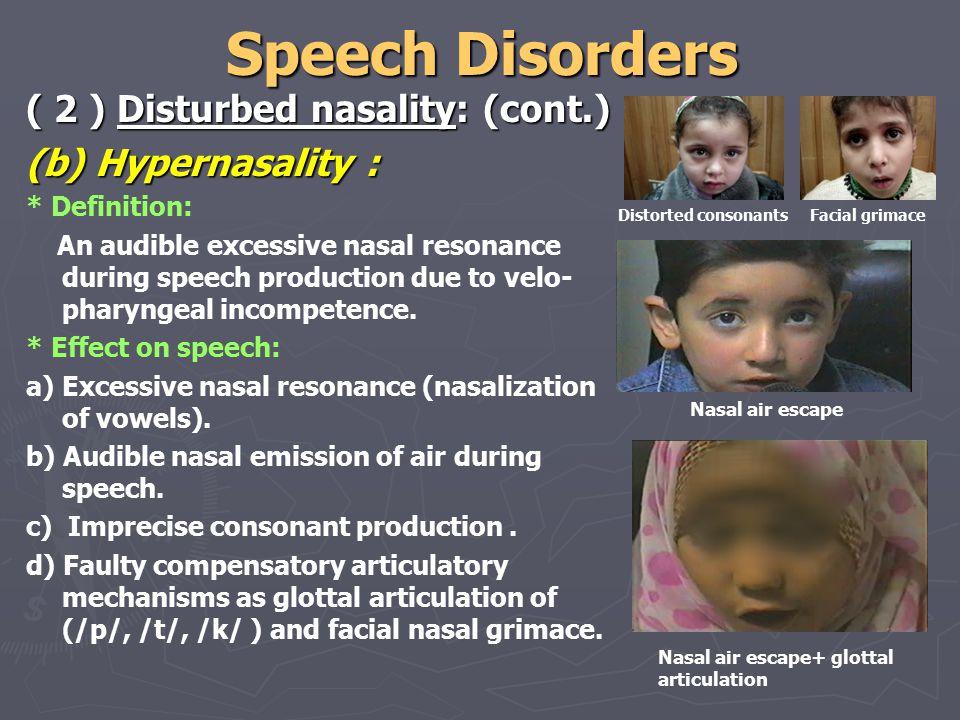 nasalisation nasal polyp