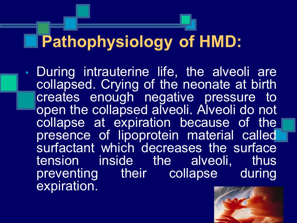 Pathophysiology of HMD: