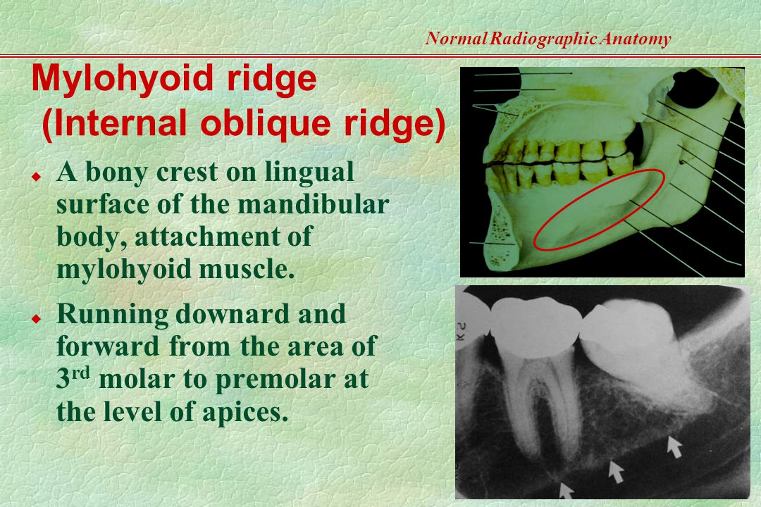 Normal Radiographic Anatomy- Based on Intraoral Films ...