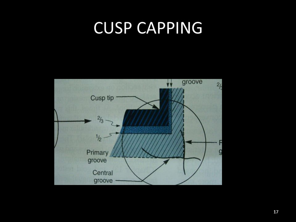 CUSP CAPPING