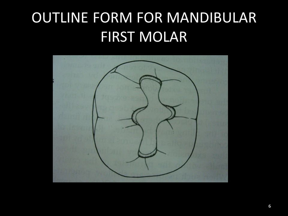 OUTLINE FORM FOR MANDIBULAR FIRST MOLAR