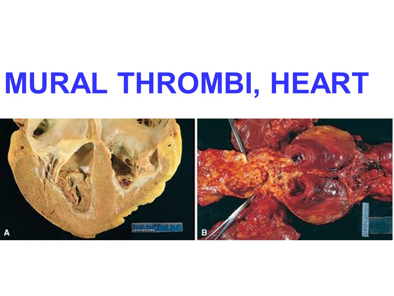 Hemodynamic disorders ppt video online download for Mural thrombi