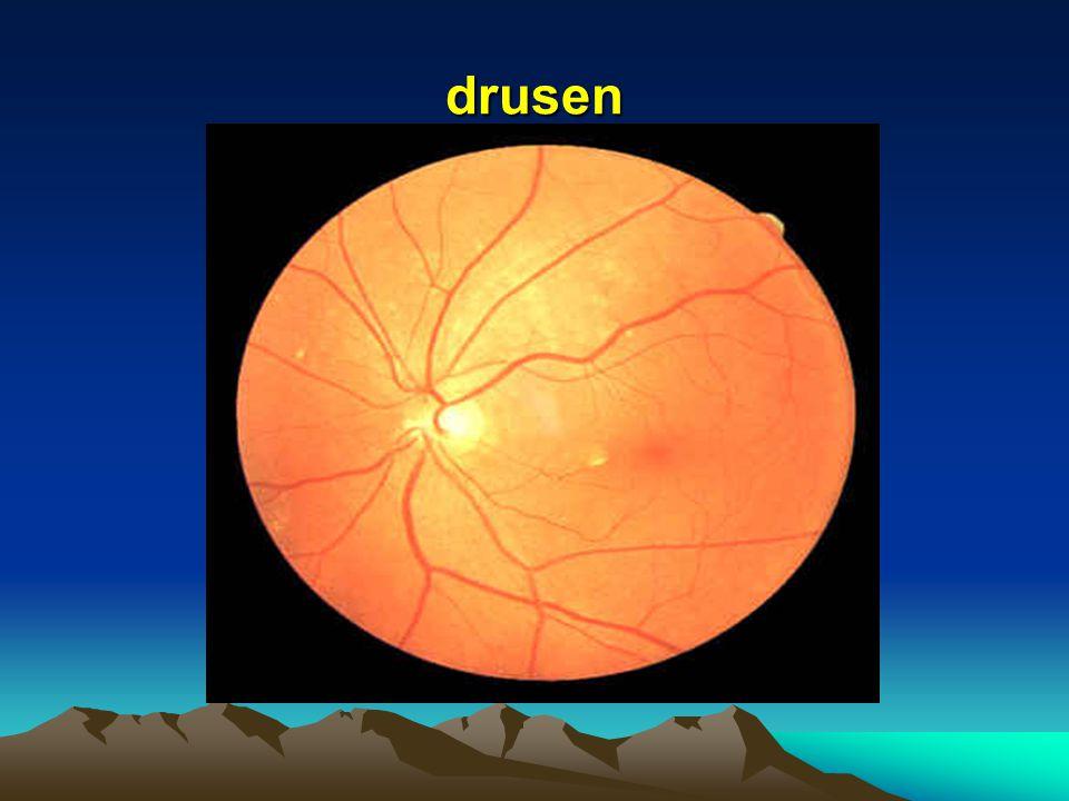 drusen and their relationship to senile macular degeneration