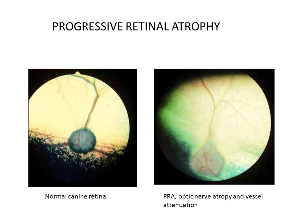 Progressive Retinal Atrophy In Dogs Pictures