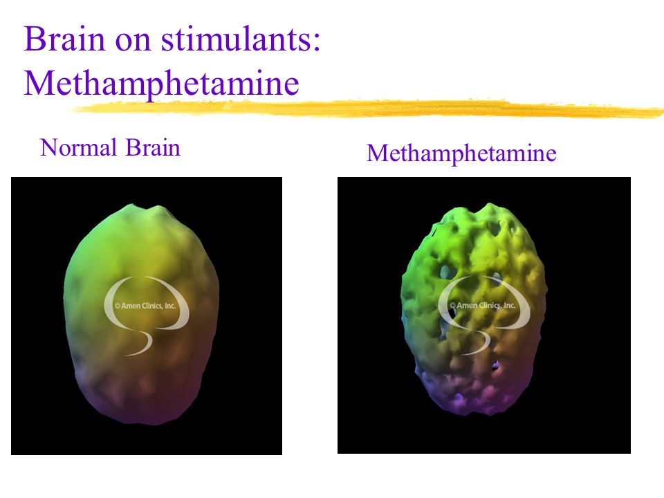 Medicine that helps brain function picture 3