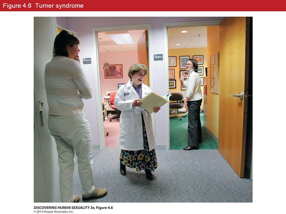 Figure 4.6 Turner syndrome