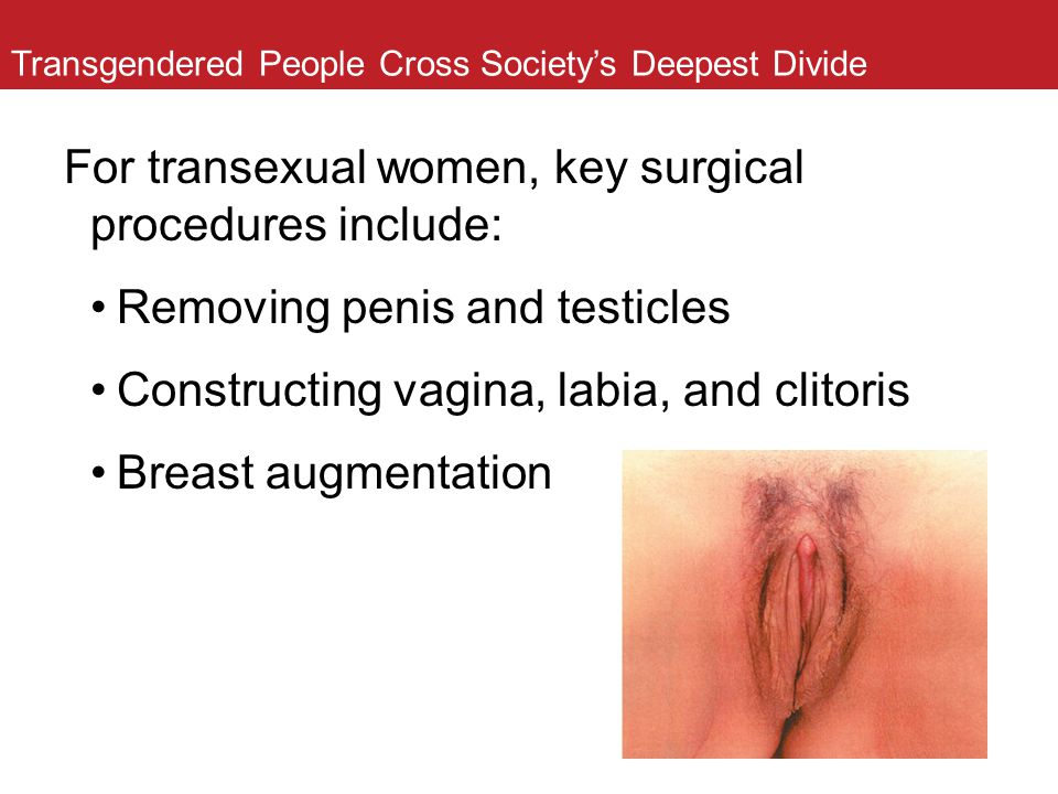 Transgendered People Cross Society's Deepest Divide