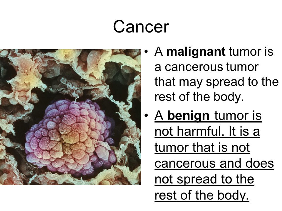 Cancer A malignant tumor is a cancerous tumor that may spread to the rest of the body.