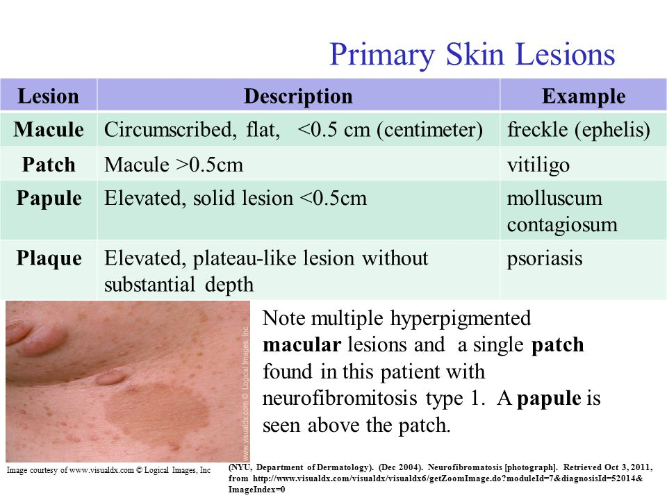 skin disease essays Skin disease: skin disease, any of the diseases or disorders that affect the human skin they have a wide range of causes although most diseases affecting the skin originate in the layers of the skin, such abnormalities are also important factors in the diagnosis of a variety of internal diseases.
