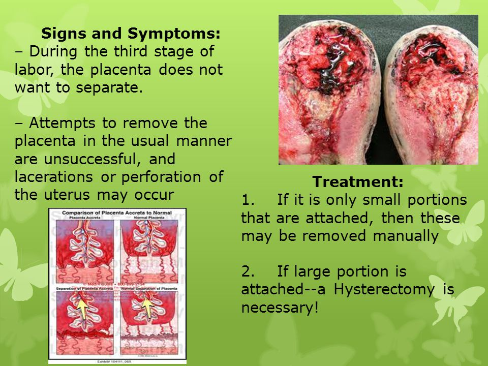 Signs and Symptoms: – During the third stage of labor, the placenta does not want to separate.