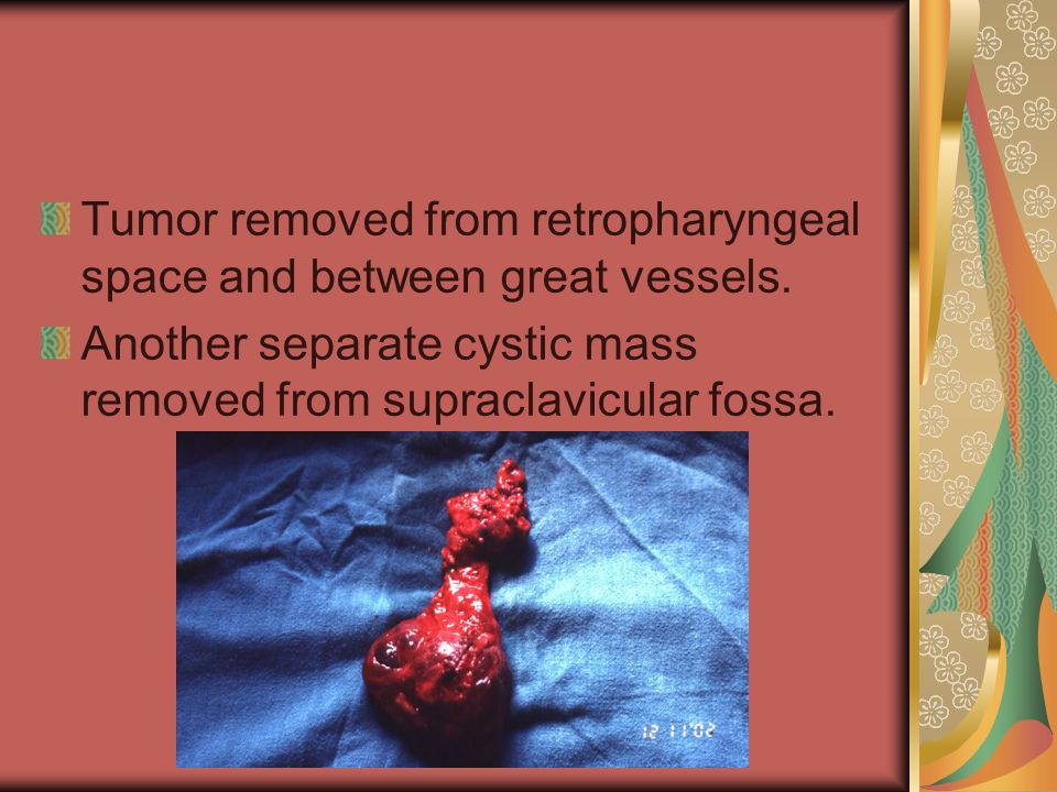 Tumor removed from retropharyngeal space and between great vessels.