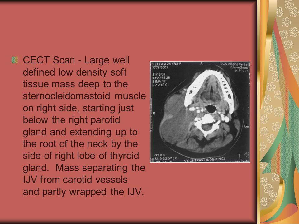 CECT Scan - Large well defined low density soft tissue mass deep to the sternocleidomastoid muscle on right side, starting just below the right parotid gland and extending up to the root of the neck by the side of right lobe of thyroid gland.