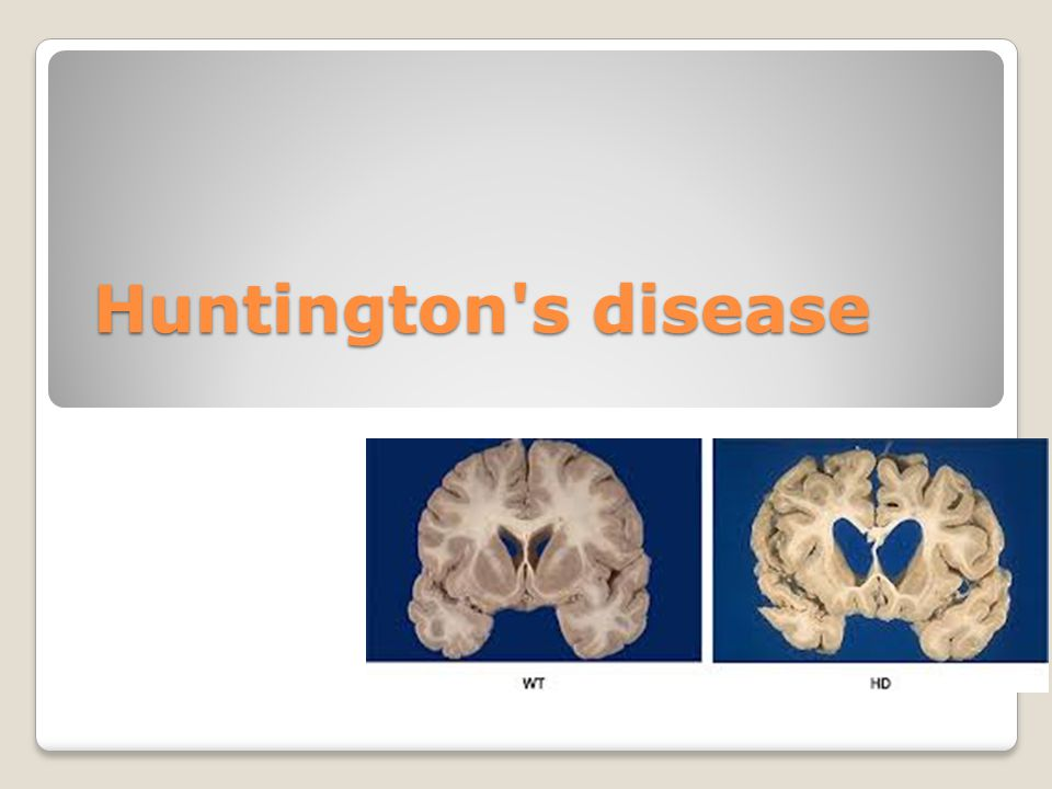 Nett Anatomy And Physiology Of Huntingtons Disease Galerie ...