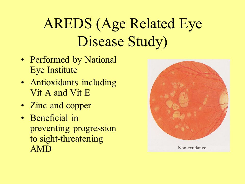An analysis of the Age Related Eye Disease Study 2 (AREDS2)
