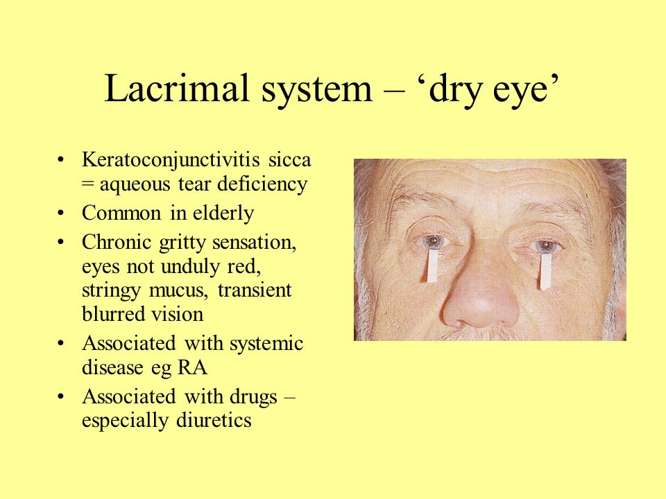 Eye Problems Associated With Taking Cialis