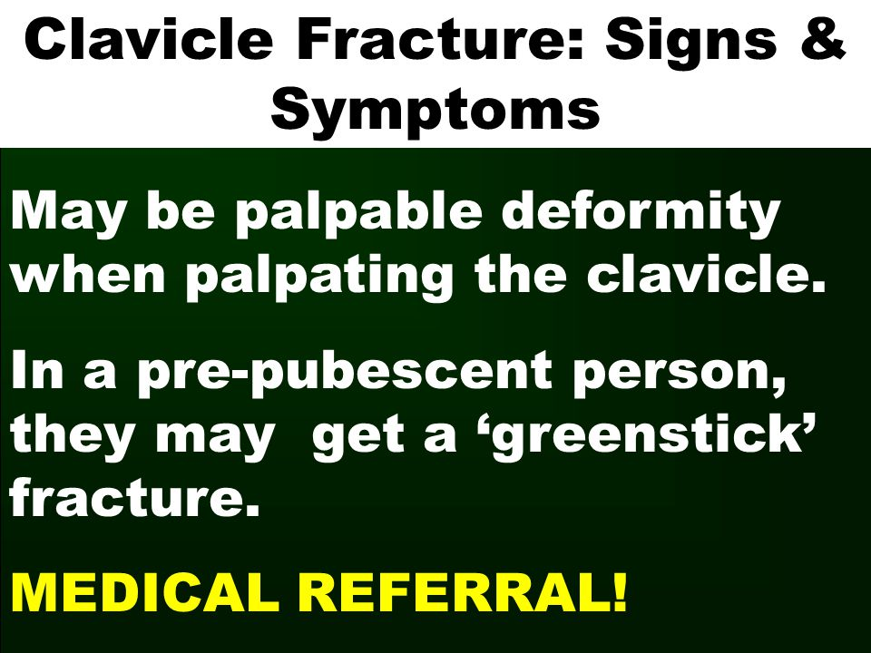 Clavicle Fracture: Signs & Symptoms