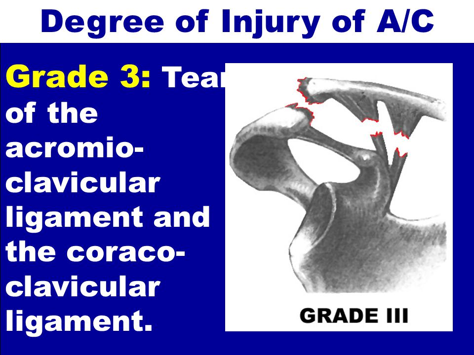 Degree of Injury of A/C Grade 3: Tear of the acromio-clavicular ligament and the coraco-clavicular ligament.