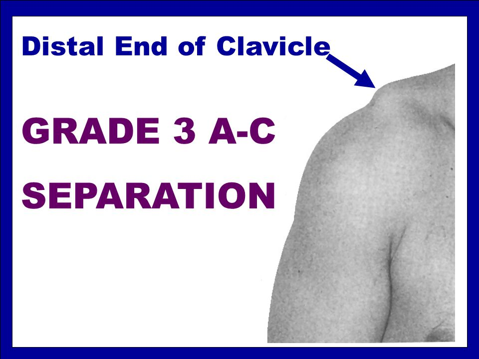 Distal End of Clavicle GRADE 3 A-C SEPARATION