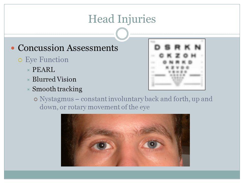 Head Injuries Ppt Video Online Download