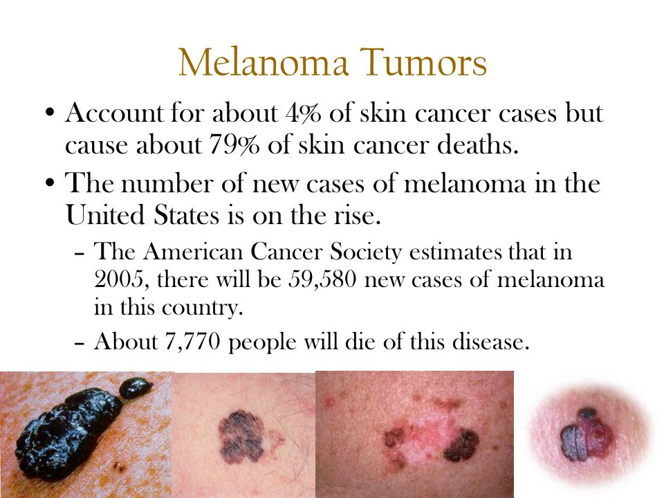 Protect the skin youre in ppt video online download melanoma tumors account for about 4 of skin cancer cases but cause about 79 toneelgroepblik Images