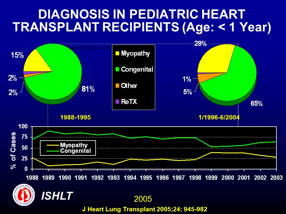 DIAGNOSIS IN PEDIATRIC HEART TRANSPLANT RECIPIENTS (Age: < 1 Year)