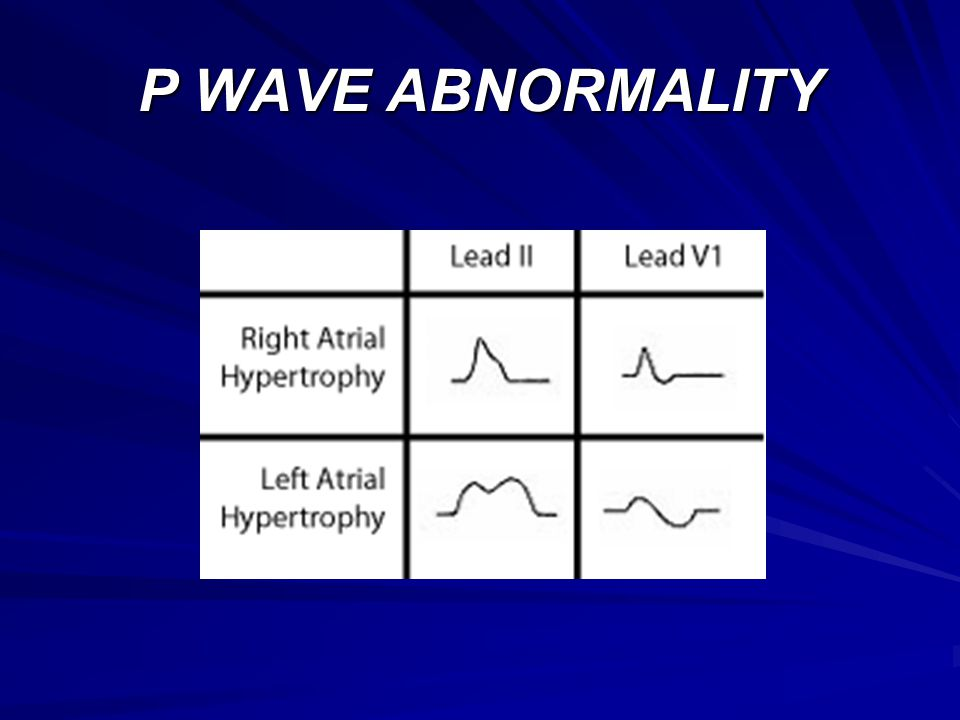 P WAVE ABNORMALITY