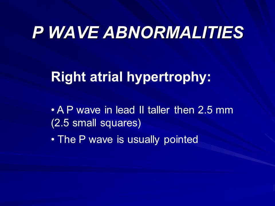 P WAVE ABNORMALITIES Right atrial hypertrophy: