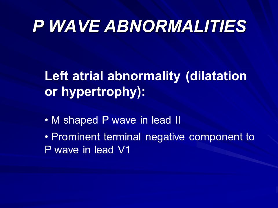 P WAVE ABNORMALITIES Left atrial abnormality (dilatation or hypertrophy): M shaped P wave in lead II.