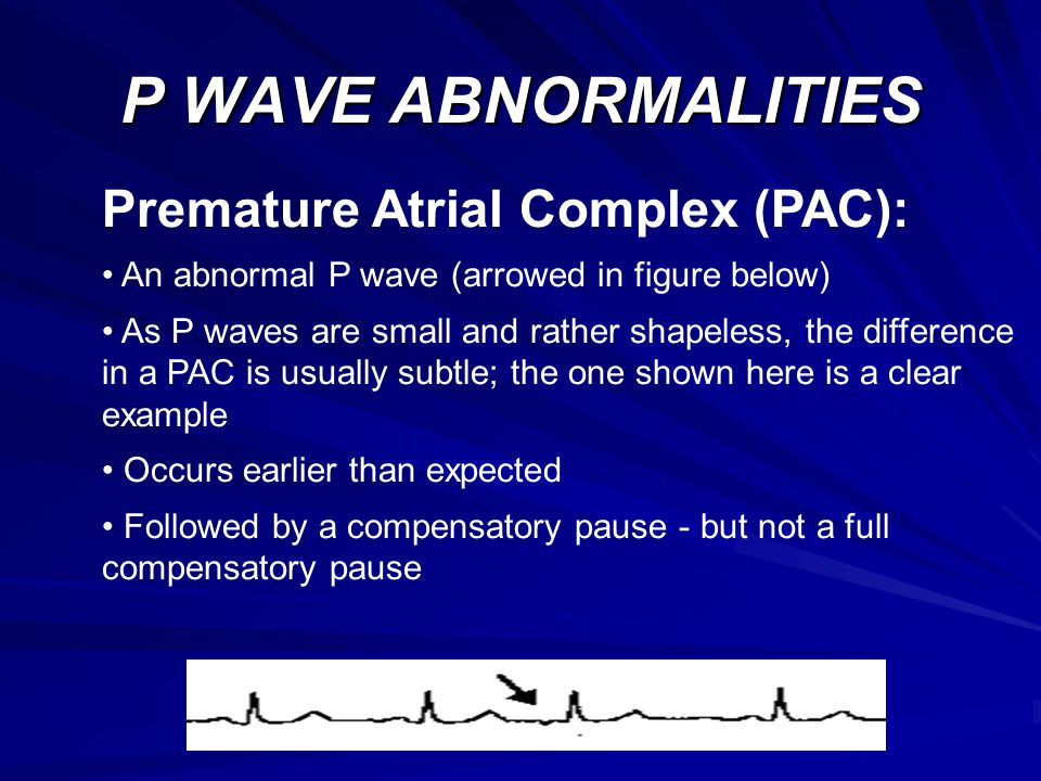 P WAVE ABNORMALITIES Premature Atrial Complex (PAC):