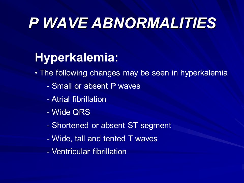 P WAVE ABNORMALITIES Hyperkalemia  sc 1 st  SlidePlayer & ELECTROCARDIOGRAMs (ECGs) - ppt video online download