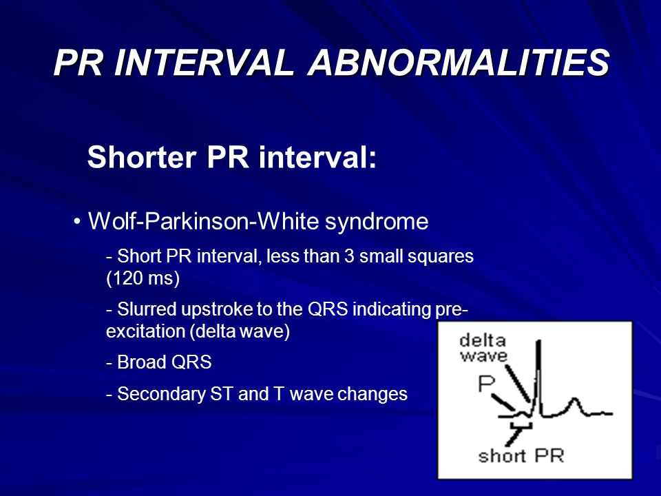 PR INTERVAL ABNORMALITIES