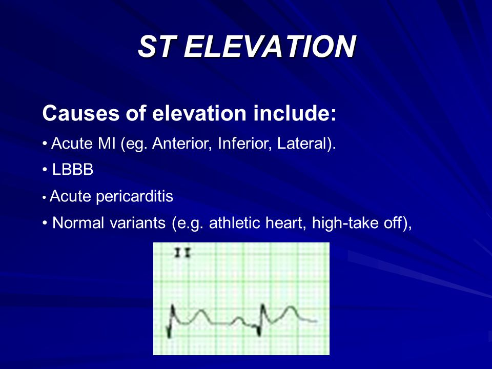 ST ELEVATION Causes of elevation include: