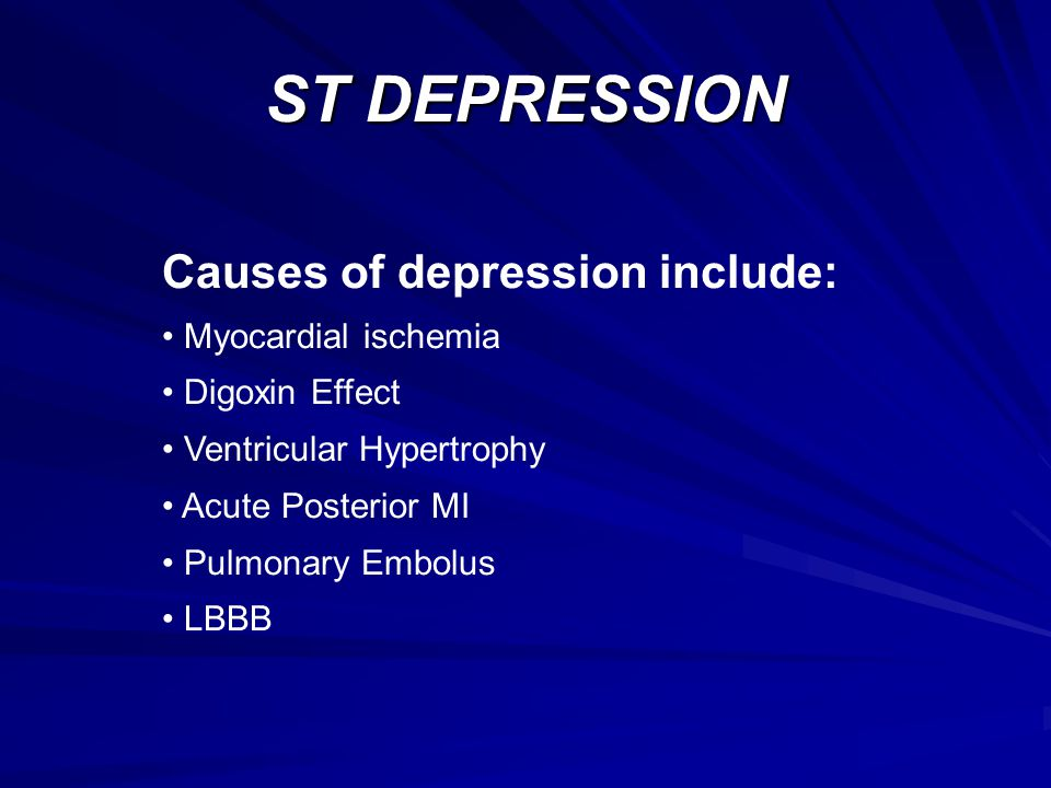ST DEPRESSION Causes of depression include: Myocardial ischemia