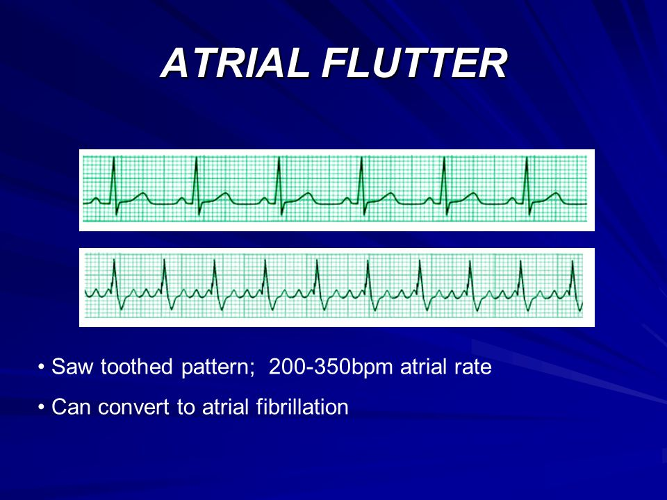ATRIAL FLUTTER Saw toothed pattern; bpm atrial rate