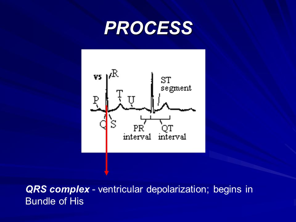 PROCESS QRS complex - ventricular depolarization; begins in Bundle of His