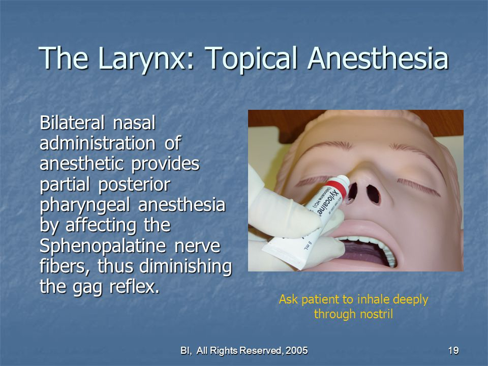 topical anesthesia