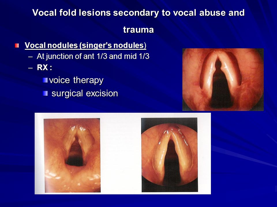 Vocal fold lesions secondary to vocal abuse and trauma