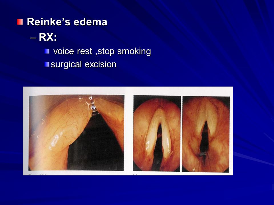 Reinke's edema RX: voice rest ,stop smoking surgical excision