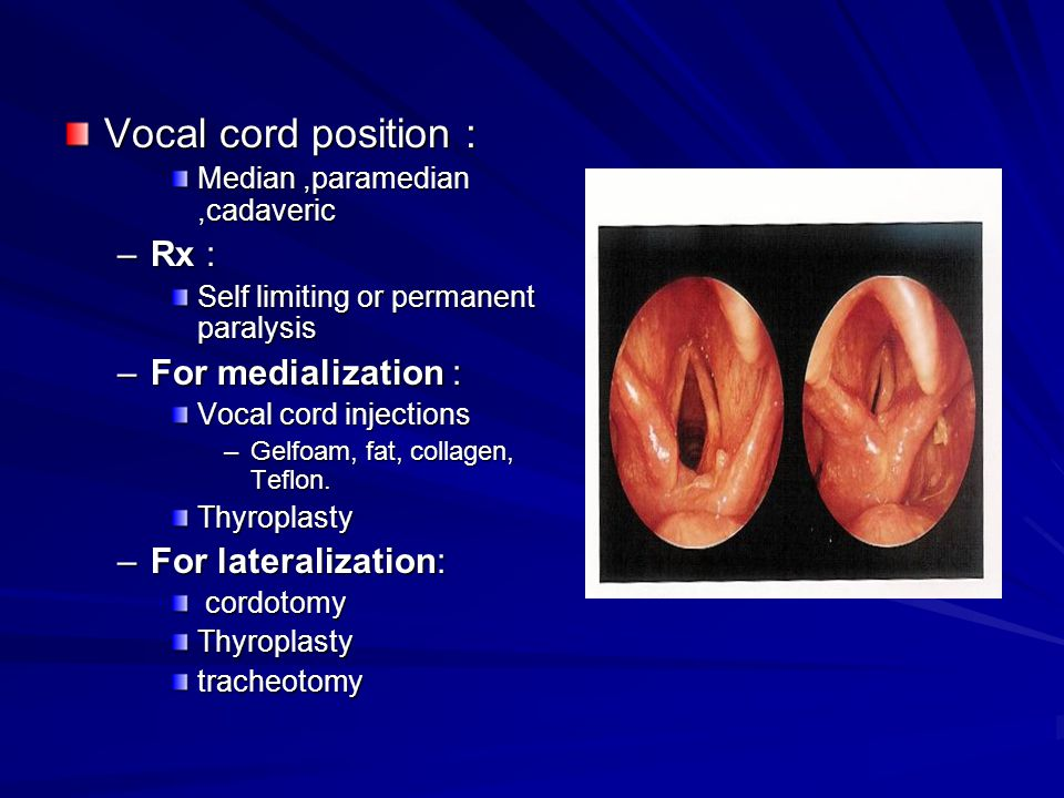 Vocal cord position : Rx : For medialization : For lateralization: