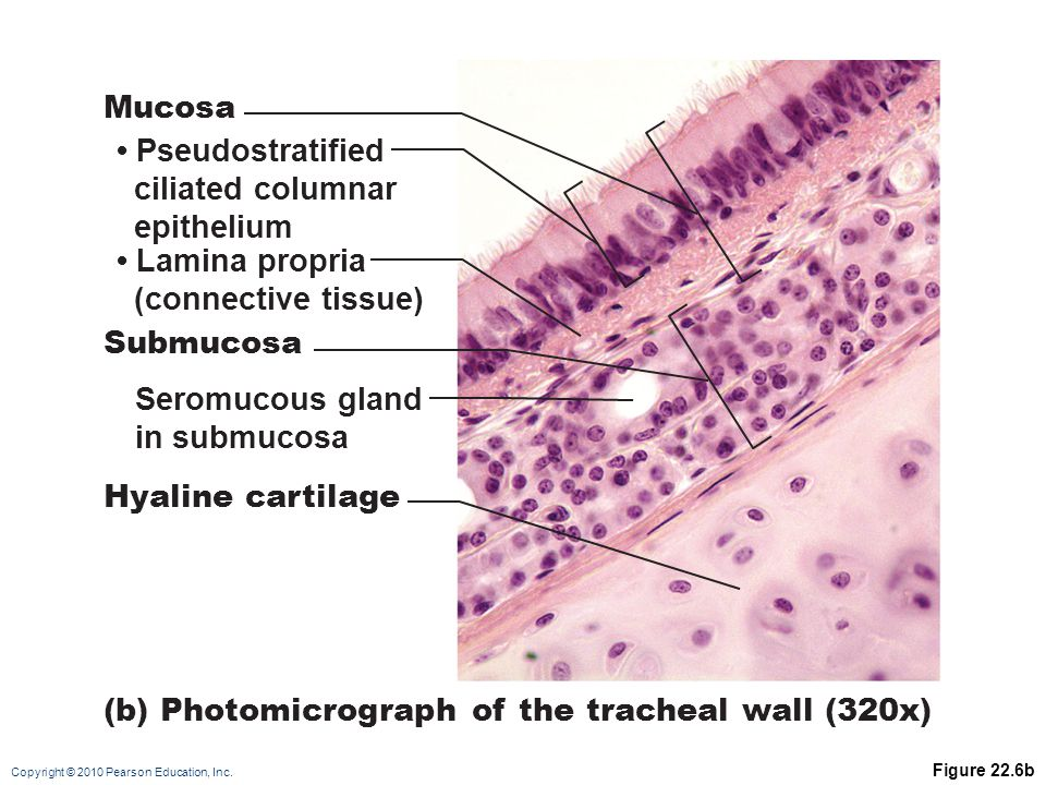 (b) Photomicrograph of the tracheal wall (320x)