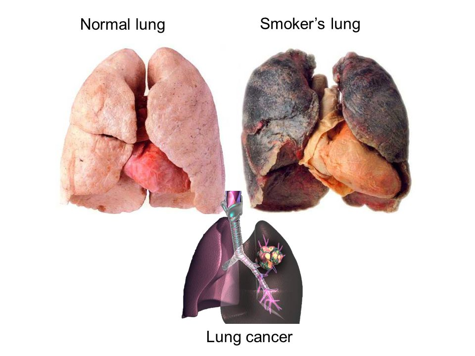 Normal lung Smoker's lung Lung cancer