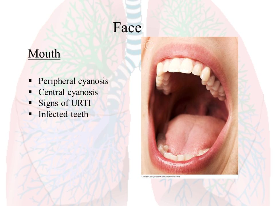 Face Mouth Peripheral cyanosis Central cyanosis Signs of URTI