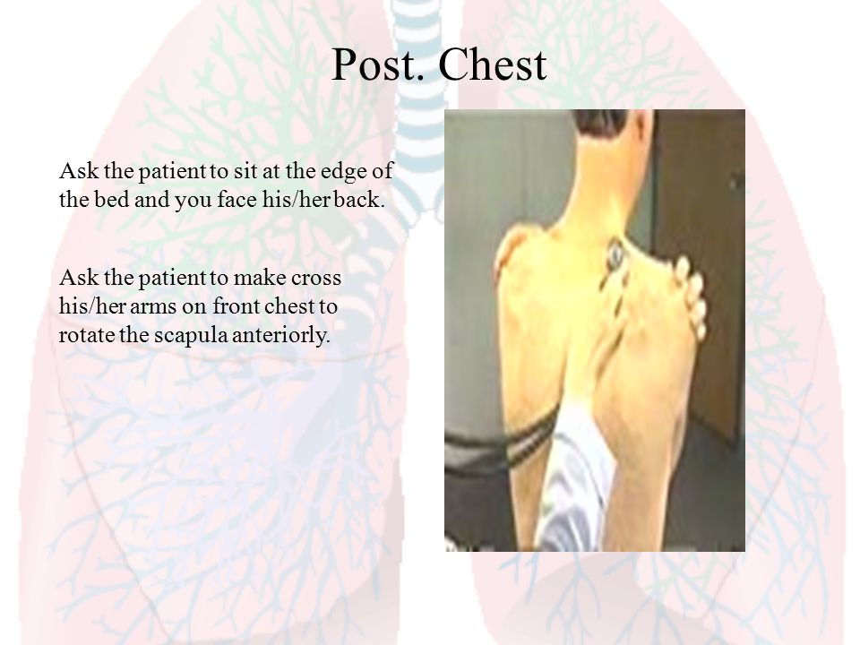 Post. Chest Ask the patient to sit at the edge of the bed and you face his/her back.