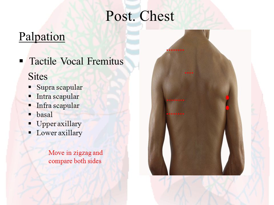 Post. Chest Palpation Tactile Vocal Fremitus Sites Supra scapular