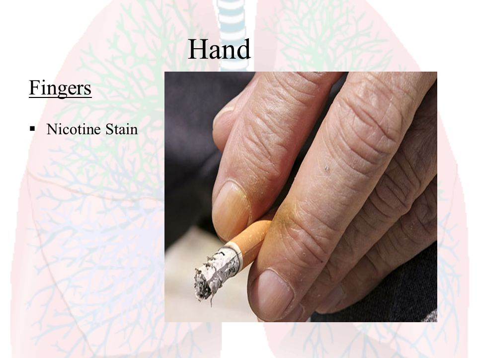 Hand Fingers Nicotine Stain