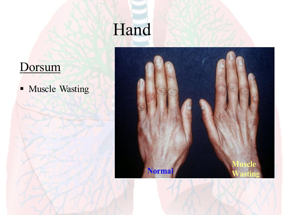 Hand Dorsum Muscle Wasting