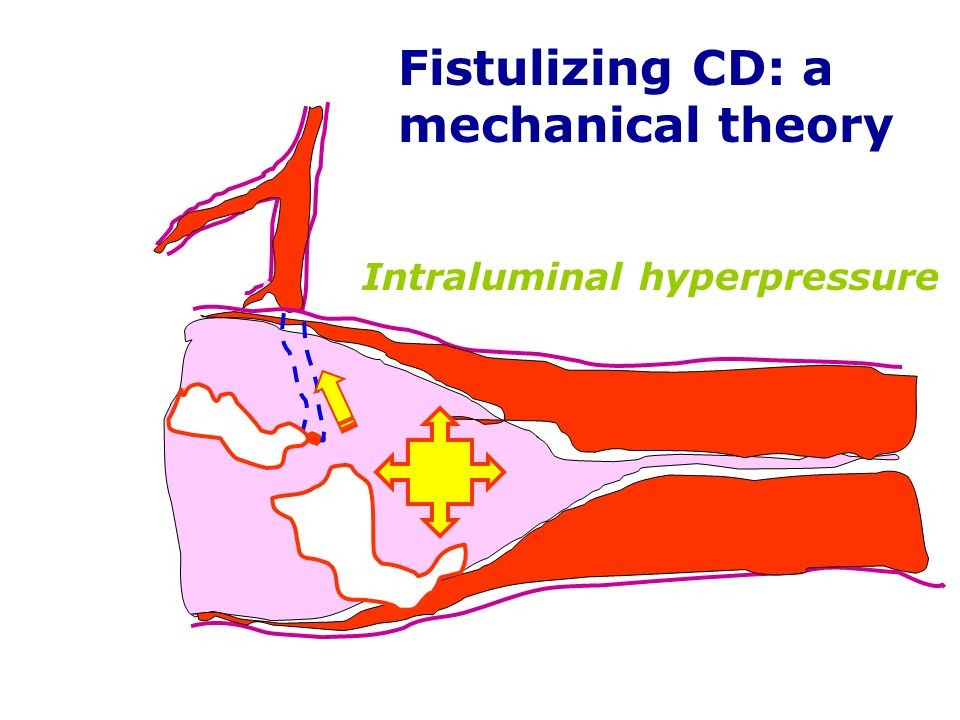 Fistulizing CD: a mechanical theory