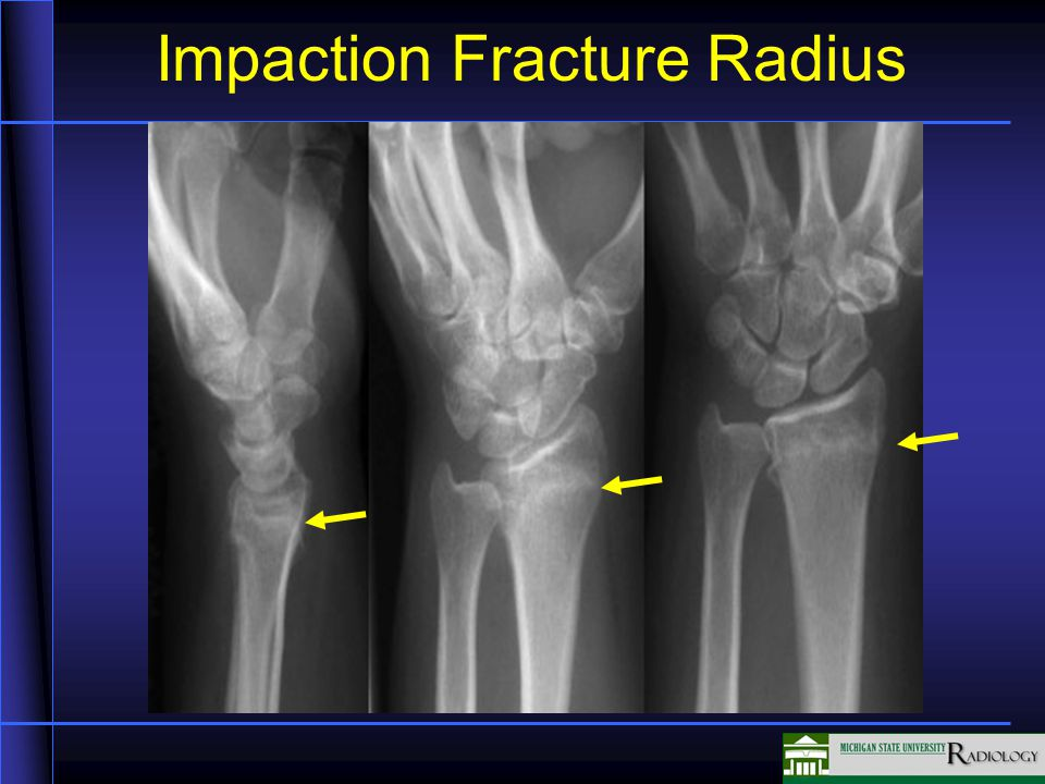 fractures in this unit we will be discussing fractures